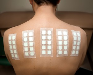 Scratch patch and intradermal testing are part of which system testing